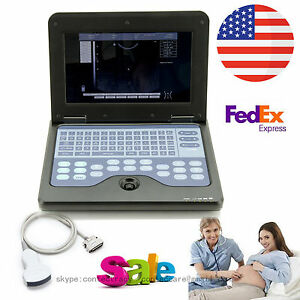 Us Sale Digital Portable Ultrasound Scanner Ultrasonic Machine convex Probe fda