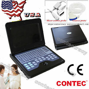 Us Seller Laptop Scanner Machine Ultrasound Diagnostic Systems Convex micro Ce