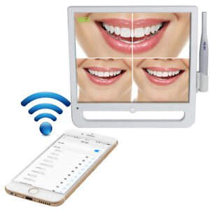 Dental Intra Oral Camera 1208 1024 High Resolution 17 Inch Lcd Aio Monitor Wifi
