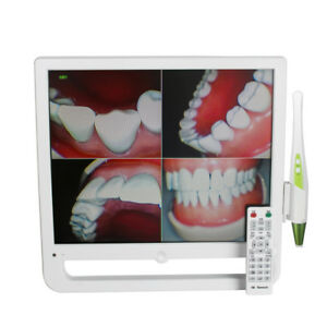 10 Million Pixels Digital Dental Intra Oral Camera 17 Inch Lcd Aio Monitor Wifi