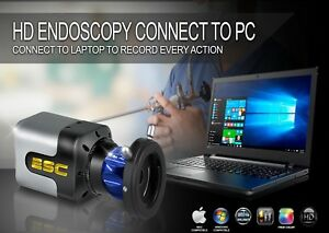Endoscope Camera Rigid Endoscopy Ent Medical Hd Sony 1 Megapixel Connect Laptop