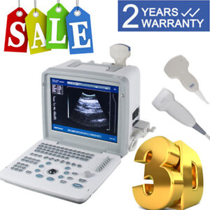 Full Digital Ultrasound Scanner Machine Cardiac Convex Linear Probe 3d Software