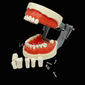 Dental Teeth Model With Removable Teeth Compatible With Kilgore Nissin Typodont
