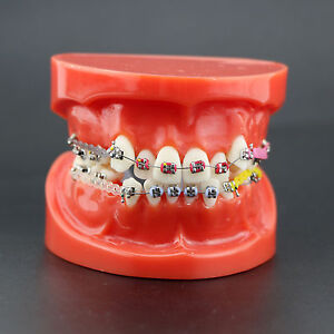 Dental Orthodontic Treatment Study Model With Metal Bracket Arch Wire Chain Tie