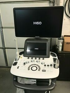 Samsung Medison H60 Ultrasound In Great Working Condition V2 01