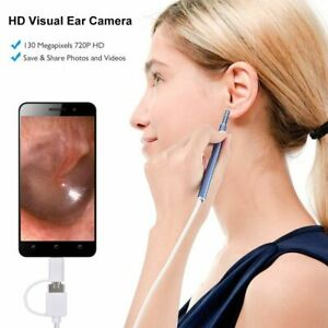 Ear Cleaning Usb Endoscope 3 In 1 720p Led Earwax Pick Spoon Otoscope Camera