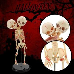 Double Heads Infant Skull Human Research Model Skeleton Anatomical Brain Anatomy
