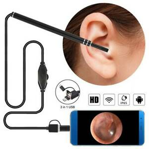 3 In 1 Visual Ear Cleaning Endoscope Usb Visual Earpick Hd Camera Spoon Otoscope