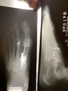 5 Pounds Scrap Exposed X ray Film Silver Recovery 1990s Xray Foot Podiatrist