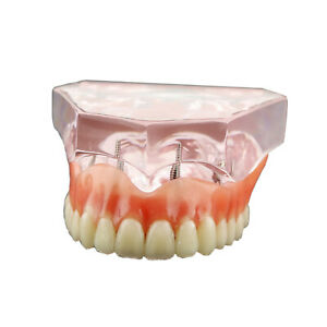 Dental Study Overdenture Superior With 4 Implants Demo Model 6001 Pink
