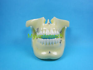 1 Piece Dental Orthodontic Anchorage Implant Study Model