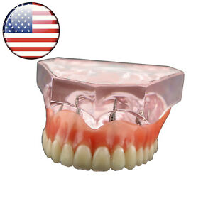 Usa Dental Study Model Overdenture Superior With 4 Implants Demo Model 6001