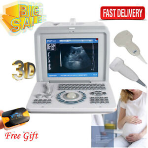 Portable Digital Ultrasound Scanner Convex abdominal Linear 2 Transducer 3d Ce