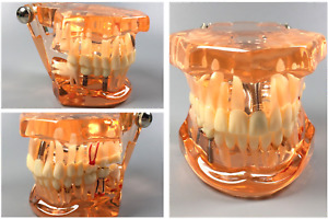 5pcs Dental Implant Disease Teeth Study Model With Restoration Bridge Maryland