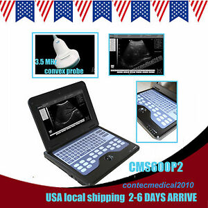 Us Shipping P2 Digital Smart Laptop Nootbook B ultrasound Scanner convex Probe