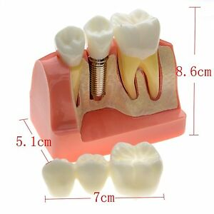 1 Pc Dental Lab Demonstration Teeth Model Implant Analysis Crown Bridge 2017