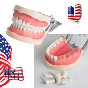 Dental Removable Teeth Teaching Model Adult Standard Typodont Demonstration Usa