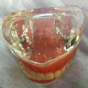 Full Denture Model Dental Model Teeth Model