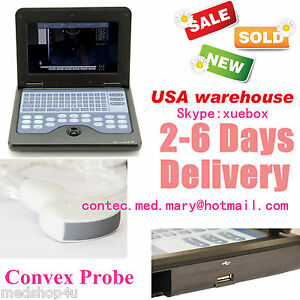 Promotion Digital Ultrasound Scanner Medical System For Human convex Probe fda