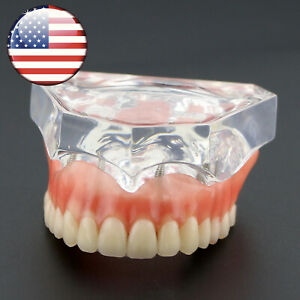 Usa Dental Study Model Overdenture Superior 4 Implants Demo Model 6001 Clear