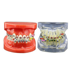 Dental Orthodontics Treatment Model With Metal Brackets Arch Wires Ties Chains