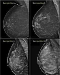 X ray Film Of Breasts Mammography Breast Cancer Awareness Month Special