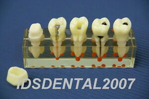 Dental Dentist Endo Endodontic Demonstration Model New