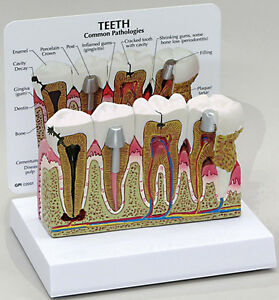 Dental Human Tooth Teeth Anatomical Model Oversized Anatomy Us Stock