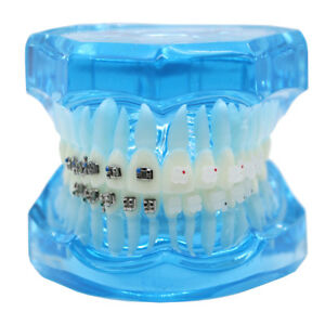 Dental Orthodontic Teach Study Teeth Model Mental And Ceramic Bracket Contrust