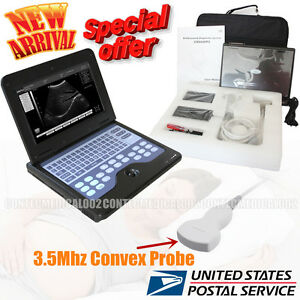 New Ce Portable Usb Digital Ultrasound Machine Scanner 3 5 Mhz Convex Probe sw