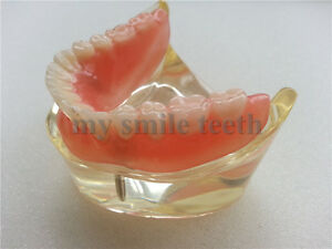 New 1 Piece Dental Study Teeth Model For Overdenture Inferior With 2 Implants