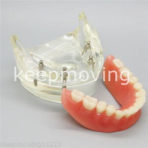 Dental Study teach Model Overdenture Inferior With 4 Implant Demo Lower 6002 02