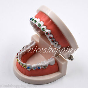 Dental Ortho Standard Teeth Tooth Teach Model With Brackets Ligature Ties