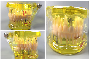2pcs Dental Implant Disease Teeth Study Model With Restoration Bridge Maryland