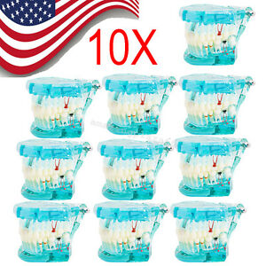 10x Dental Study Tooth Transparent Adult Pathological Teeth Model from Usa