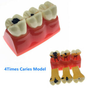 1 Piece 4 1 Size Dental Caries Removable Teeth Tooth Model Learn Study Model
