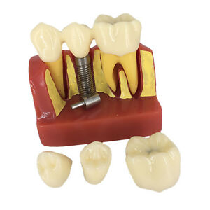 Dental Lab Implant Analysis Crown Bridge Demonstration Teeth Model