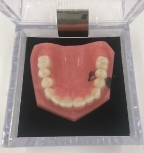 Kilgore Dental Implant Vs Bridge Denture Model 75 sti