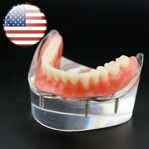 Usa Dental 4 Implants Demo Overdenture Typodont Teeth Superior Model Lower Jaw