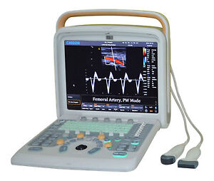 Ultrasound Chison Q5 With Trolley 3 Probes Linear Array convex Tv And Printer