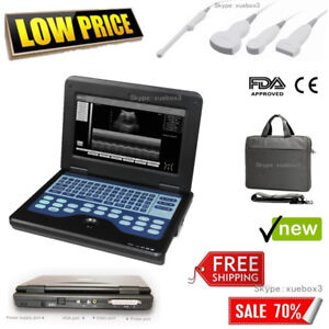Fda Ce Portable Ultrasound Scanner Laptop Machine Cms600p2 For Human 10 1 Inch