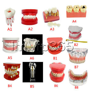 Dental Teach Study Teaching Adult Analysis Demonstration Implant Teeth Model New