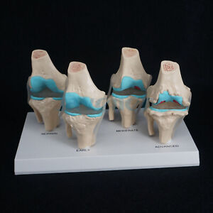 Anatomical Human Degenerative Knee Joint Disease Model Medical Skeleton Anatomy
