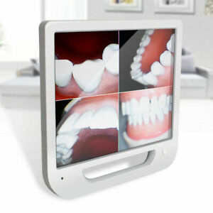 17 High definition Digital Lcd Aio Monitor Dental Intra Oral Camera Auto Focus