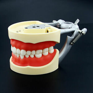 Kilgore Nissin 200 Compatible Dental Typodont Model With 32 Pcs Removable Teeth