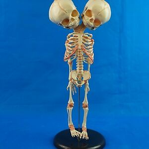 Human New Born Double Head Baby Anatomy Skull Skeleton Anatomical Brain Model