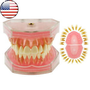 Us Dental Typodont Model Standard Model With Removable Teeth M7008