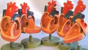 5 Human Congenital Malformation Heart Anatomical Model For Medical Doctor New