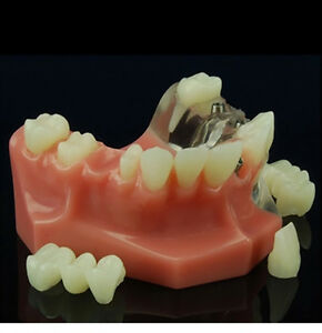 Windowed Crown And Bridge Dental Model