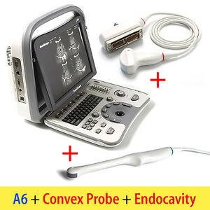 Portable Sonoscape A6 Ultrasound Machine Scanner System Transvaginal